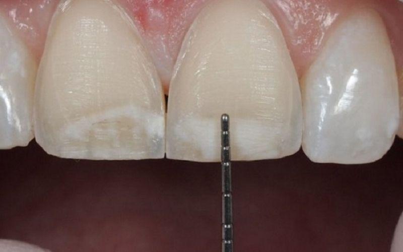 Mài răng là phương pháp cải thiện hô nhẹ nhanh chóng nhất