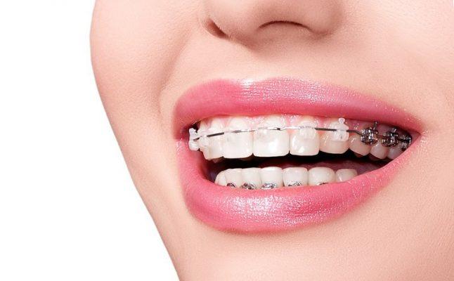 Niềng răng hô nhẹ có chi phí tương đương với hô vẩu thông thường