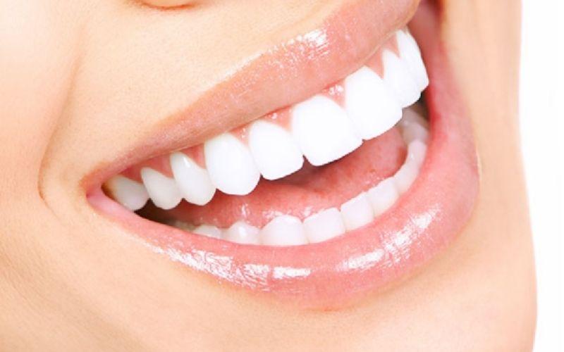 Bọc sứ mang lại vẻ đẹp hoàn hảo cho hàm răng