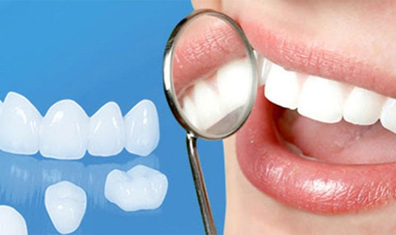 Các loại keo dán răng sứ được bày bán rộng rãi trên các trang thương mại điện tử với nhiều mức giá khác nhau