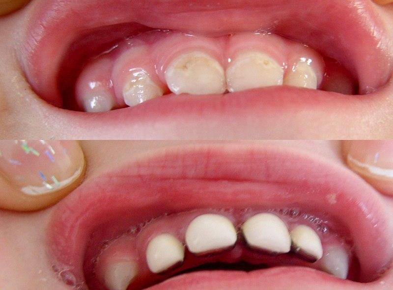 Biến chứng khi bọc răng sứ bị hở