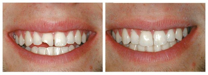 Bọc răng Composite là kỹ thuật thẩm mỹ răng được nhiều người quan tâm