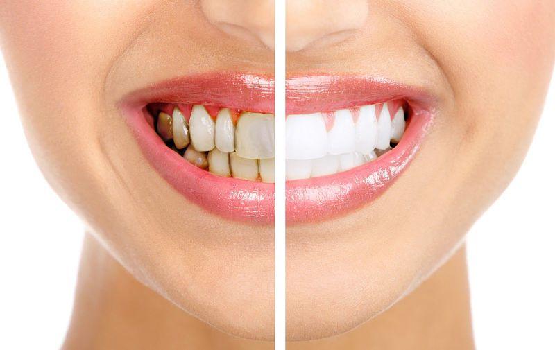 Bọc răng Composite giúp bạn có một hàm răng trắng sáng, bền bỉ