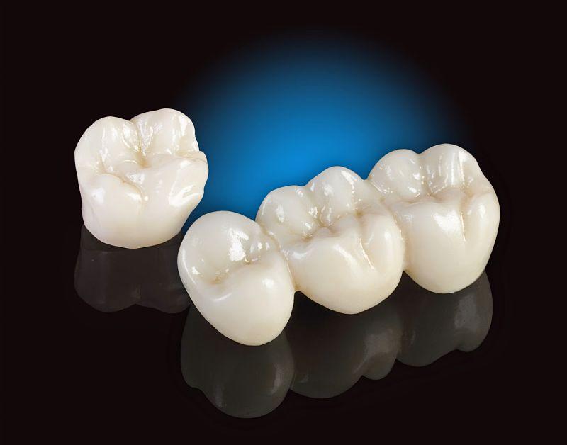 Răng sứ kim loại có độ bền cao và giá thành phù hợp