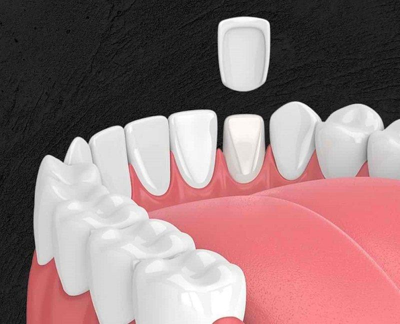 Bọc răng sứ bị cộm có thể xuất phát từ những nguyên nhân chủ quan lẫn khách quan