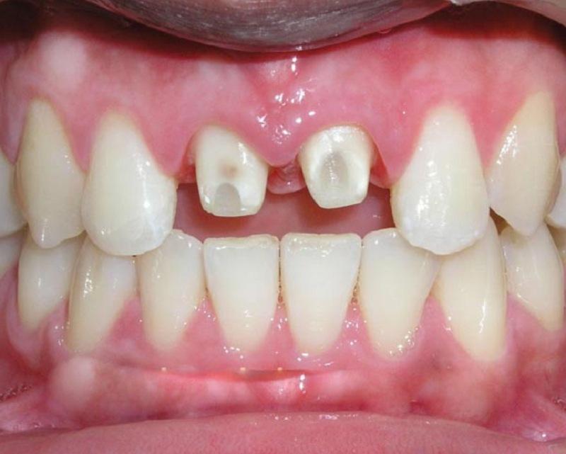 Bọc răng sứ bị hở có thể trở thành mối rủi ro đáng lo ngại