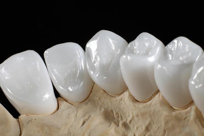 Răng sứ Cercon có độ bền tốt và tính thẩm mỹ cao