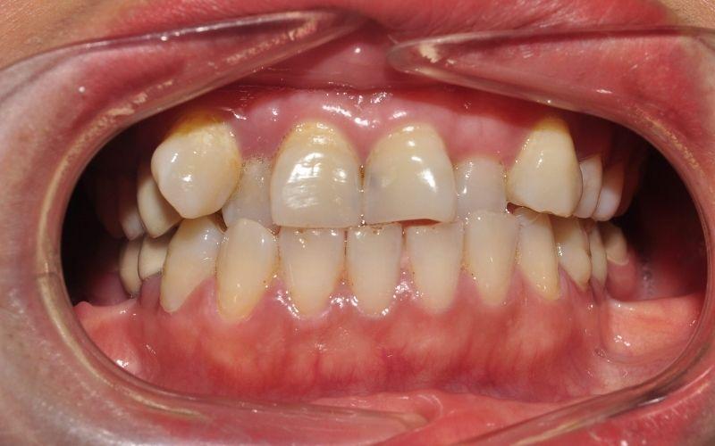 Tình trạng răng khấp khểnh, sai lệch quá nhiều có thể dẫn tới sai khớp cắn