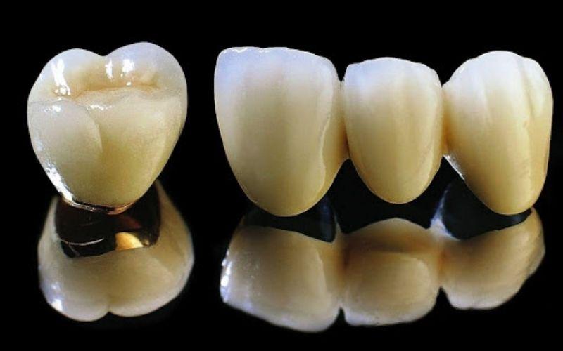 Răng sứ kim loại có khả năng chịu lực cắn tốt
