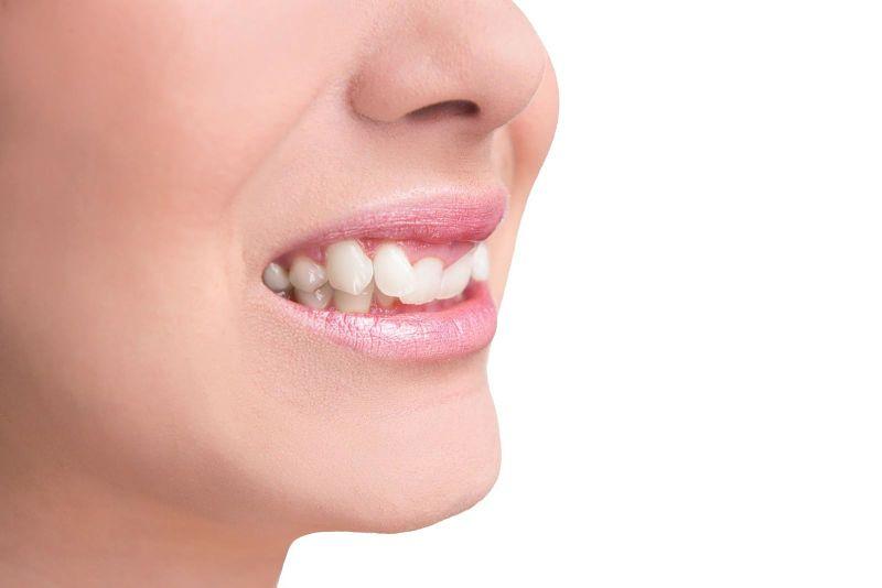 Bọc răng sứ cho răng mọc lệch là kỹ thuật hiện đại được nhiều người áp dụng