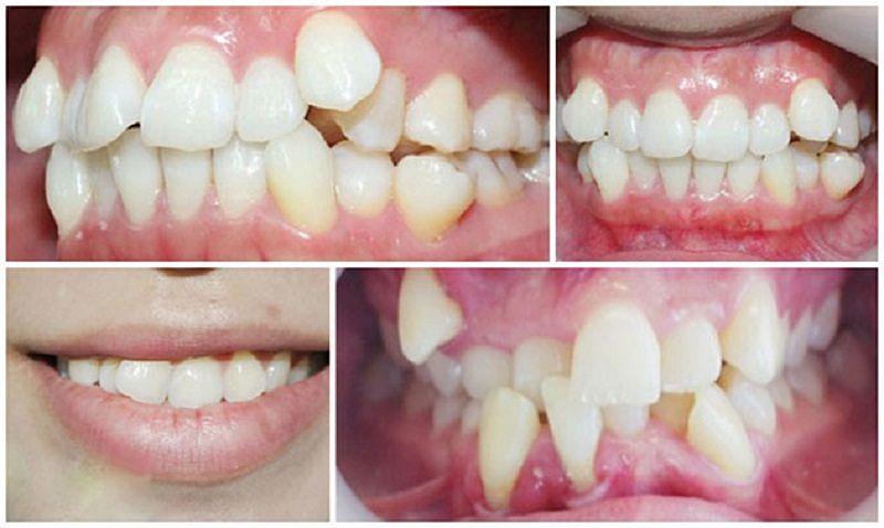 Bọc răng sứ giúp bạn khắc phục tình trạng lệch răng hiệu quả