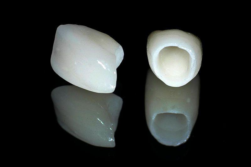 Hình ảnh răng sứ kim loại Titan