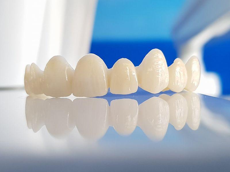Răng sứ Cercon bền đẹp, giống răng thật
