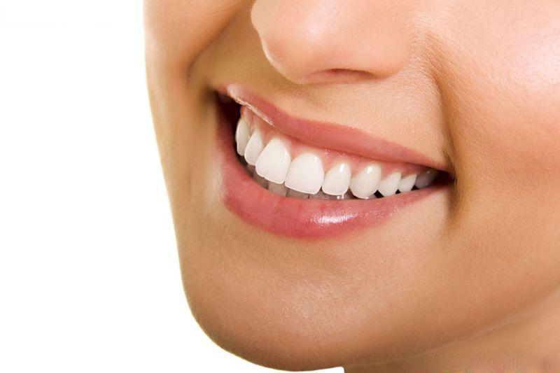 Chi phí bọc răng sứ còn phù thuộc vào nhiều yếu tố khác nhau