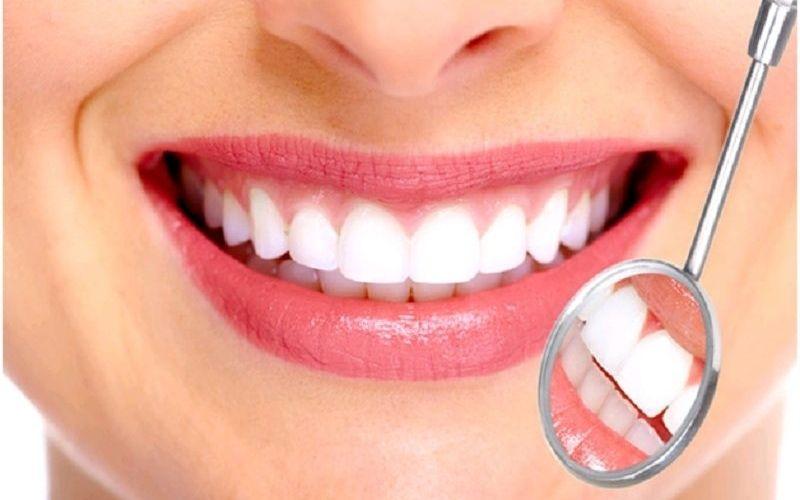 Bọc răng sứ cho răng thưa là phương pháp mang lại tính thẩm mỹ cao
