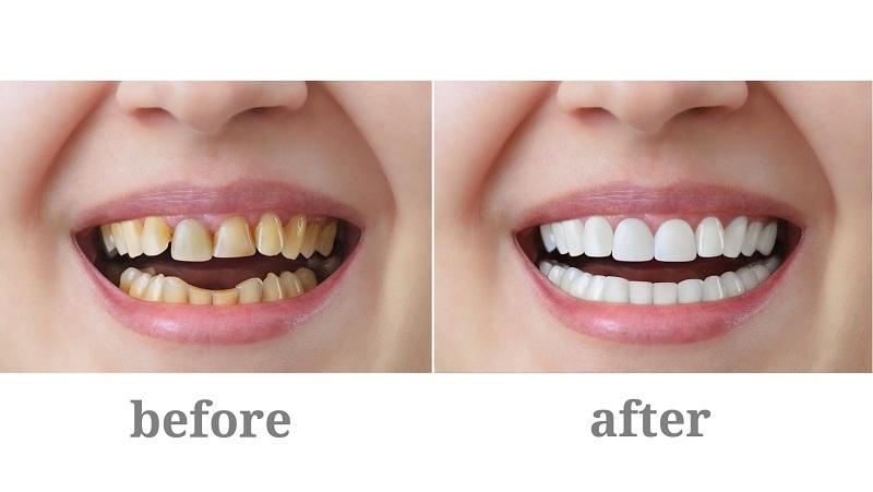 Bọc răng sứ có bền không là thắc mắc của rất nhiều người có nhu cầu