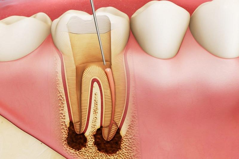 Bọc răng sứ có phải lấy tủy không là thắc mắc của rất nhiều độc giả