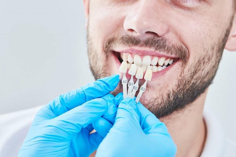 Những yếu tố tác động tới thời gian bọc răng sứ