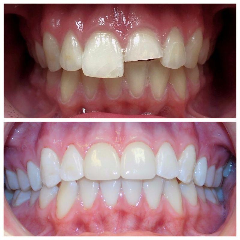 Bọc răng sứ nguyên hàm là được áp dụng cho các trường hợp bị hư hỏng nhiều răng