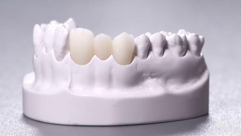 Có nhiều chất liệu răng sứ mà bạn có thể lựa chọn hiện nay