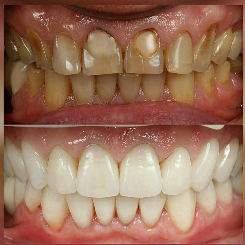 Hình ảnh bọc răng sứ nguyên hàm trước và sau khi thực hiện