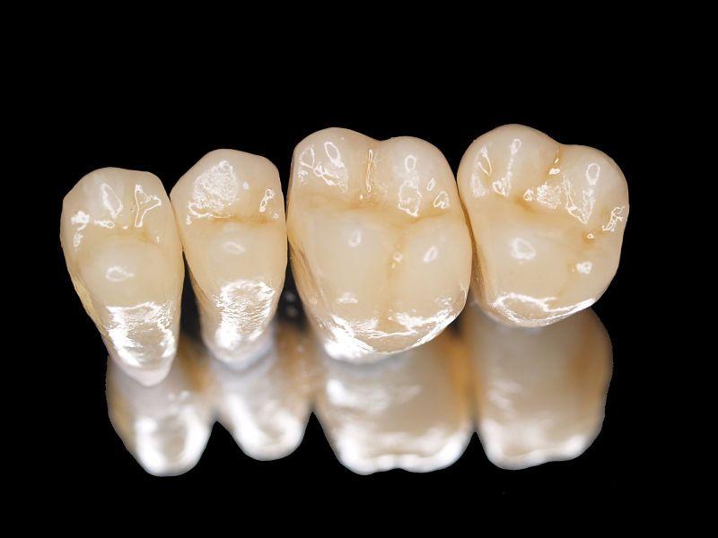Răng sứ Titan được làm từ chất liệu kim loại bên trong và lớp vỏ sứ bên ngoài