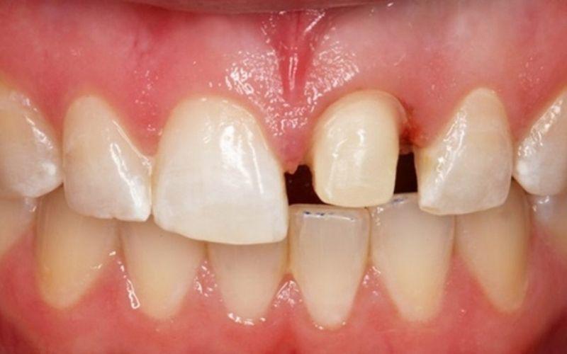 Răng của bị mẻ, thưa, không đều là một trong số những trường hợp cần bọc răng sứ