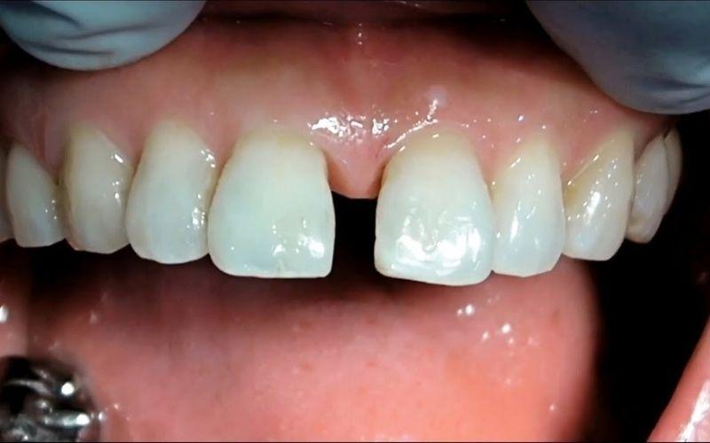 Người có răng cửa mọc thưa có thể tiến hành bọc sứ để che khuyết điểm và có chức năng ăn nhai tốt nhất