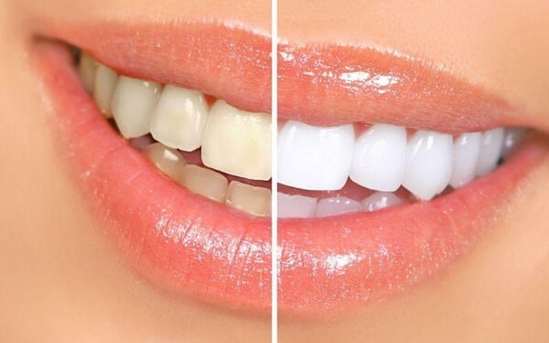 Răng sứ có hình dáng, màu sắc, kích thước tương ứng với răng thật