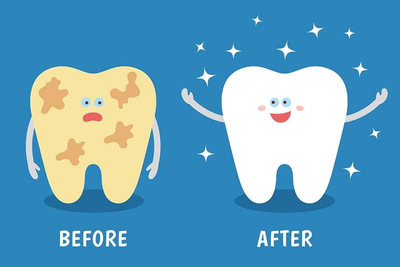 Cách lấy cao răng sẽ giúp bạn loại bỏ nhanh chóng mảng bám lâu ngày