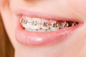 Mất răng số 6 bạn vẫn có thể niềng răng một cách bình thường được