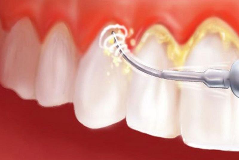 Lấy cao răng thường xuyên, định kỳ là cách để phòng tránh những bệnh về răng miệng