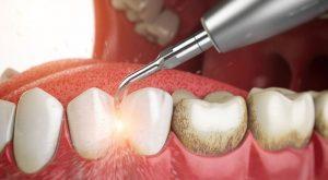 Giải đáp từ bác sĩ có nên lấy cao răng không?