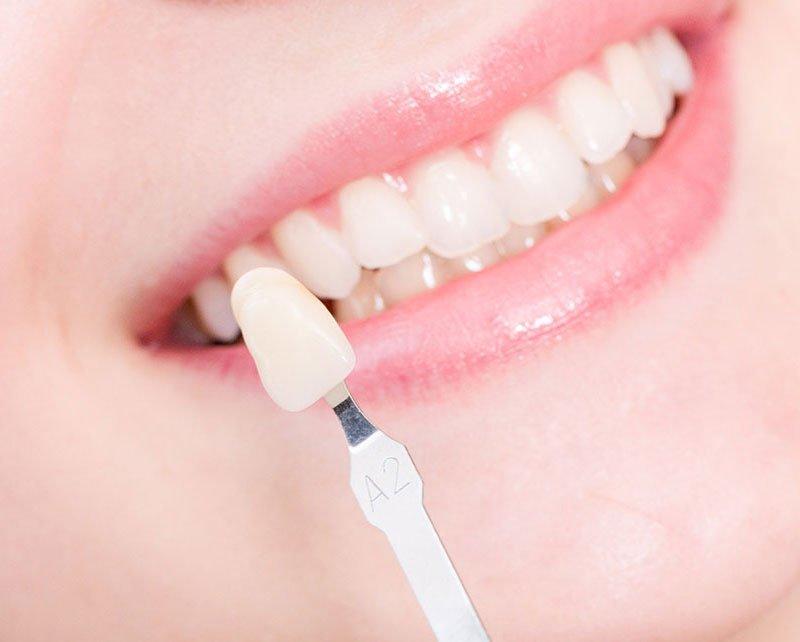 Phương pháp giúp bạn phục hồi tính thẩm mỹ cho răng miệng