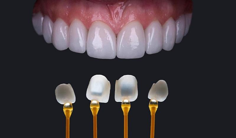 Dán Veneer không gây nguy hiểm cũng không hại đến cấu trúc răng