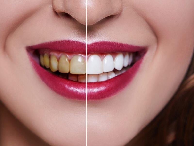 Bạn có thể đến các cơ sở nha khoa uy tín để thực hiện dán răng sứ