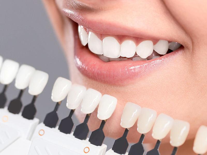 Hiện nay trên thị trường có nhiều loại miếng dán răng cho bạn lựa chọn
