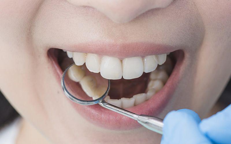 Bọc răng sứ Veneer không gây tổn thương đến tủy