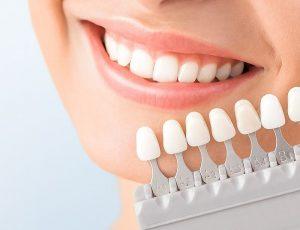 Dán răng sứ veneer có tốt không?