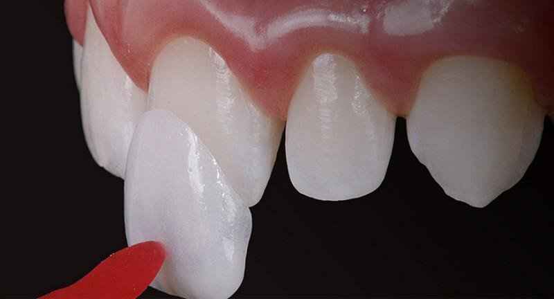 Giá dán răng sứ chịu ảnh hưởng bởi nhiều yếu tố khác nhau