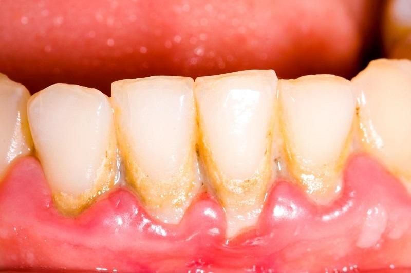 Các nha sĩ thường khuyến khích khách hàng đi lấy cao răng ít nhất 6 tháng/lần