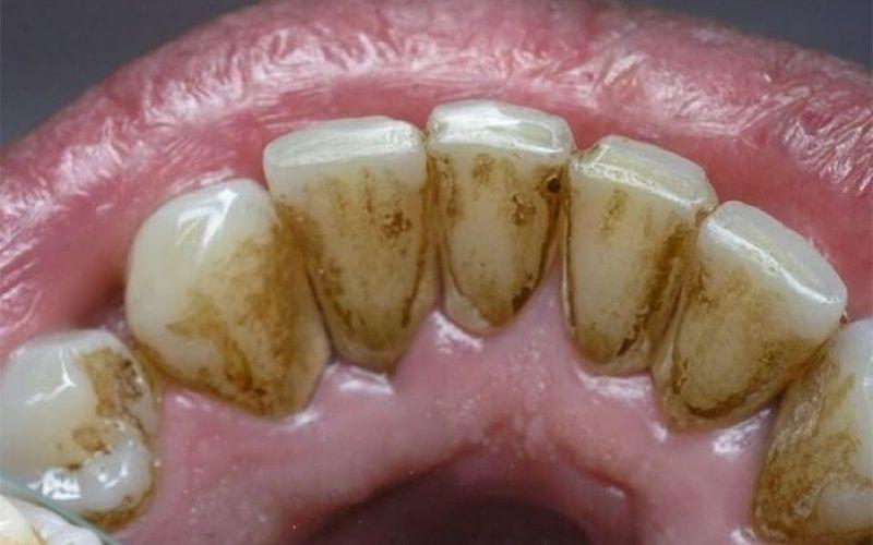 Cao răng hay vôi răng thực chất là các mảng bám dính chặt trên bề mặt răng