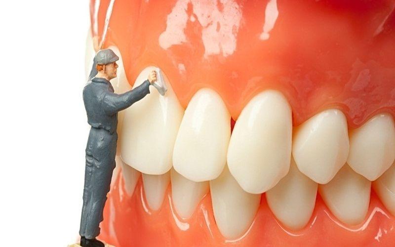 Lấy cao răng đúng định kỳ mang lại hàm răng trắng sáng, thẩm mỹ