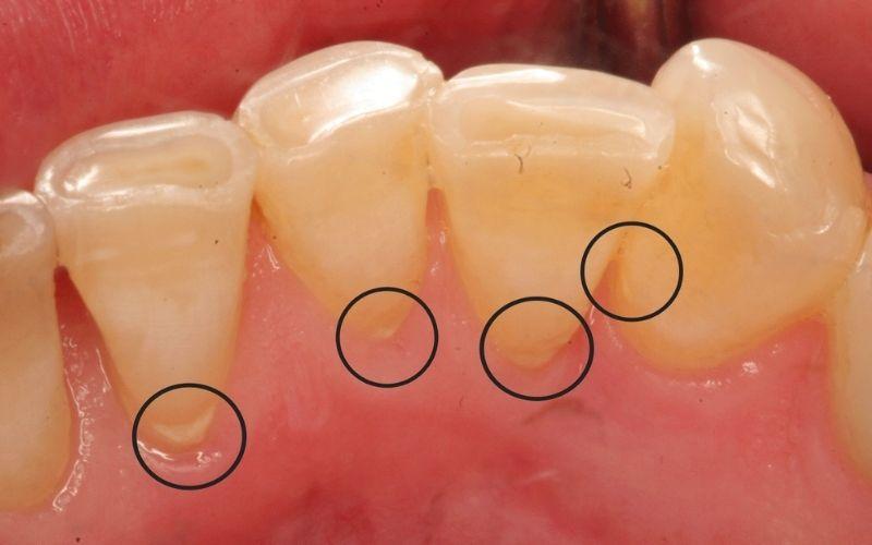 Cạo vôi răng là phương pháp sử dụng dụng cụ nha khoa để làm sạch các mảng bám xung quanh thân răng