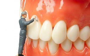 Lấy cao răng bao nhiêu tiền