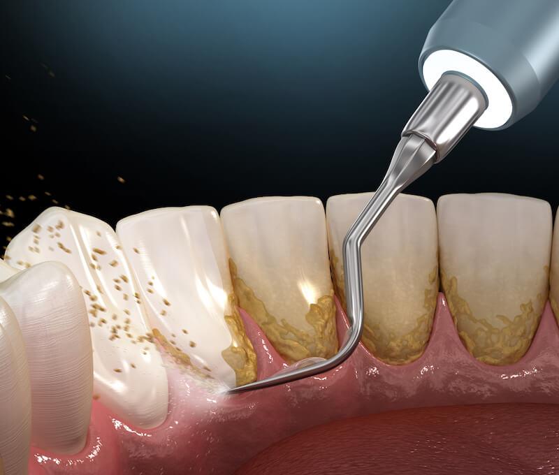 Tác hại của việc lấy cao răng sai cách