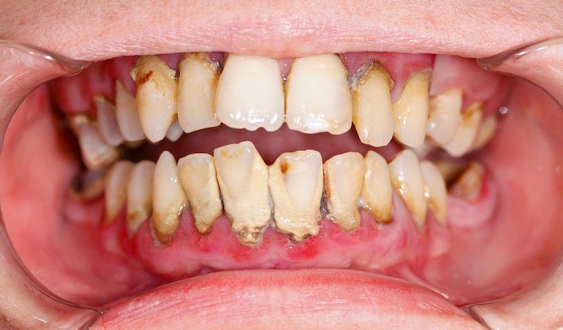 Cao răng là những mảng bám đã cứng lại trên răng, gây hại cho răng miệng