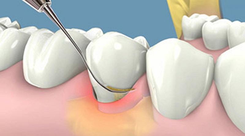 Lấy cao răng có hại không? Hoàn toàn không gây ảnh hưởng gì