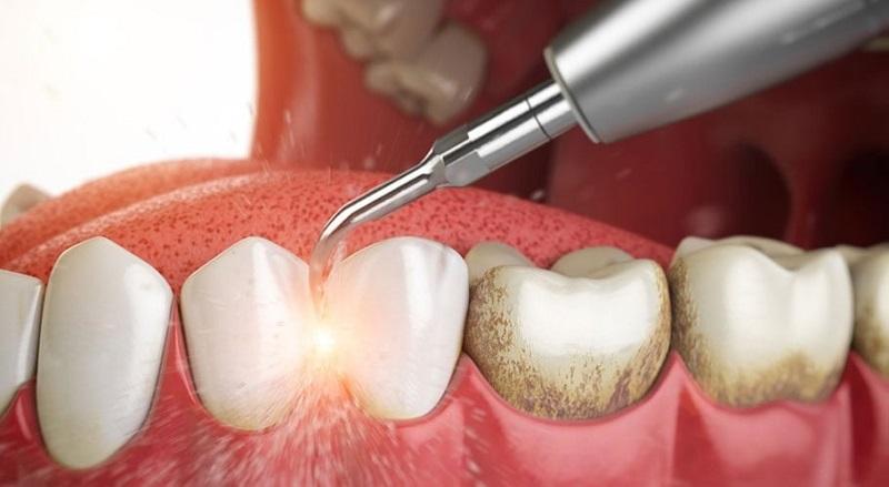 Kỹ thuật lấy cao răng để vệ sinh răng miệng sạch sẽ
