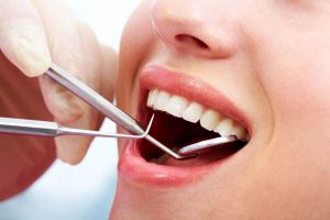 Lấy cao răng có hại không? [Giải đáp chi tiết]